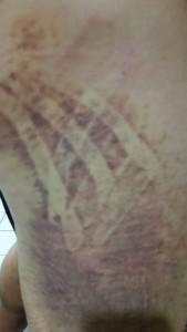 Kinesio tex tape elastic therapeutic muscle tape bruise